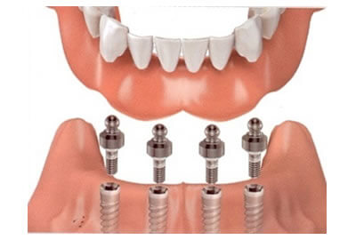Proteza dentara pe implant