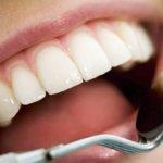 Cabinet stomatologic - parodontoza