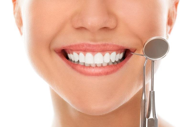 pret albire dinti